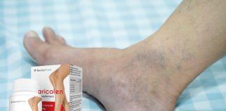 opakowanie varicolen na tle stopy z żylakami