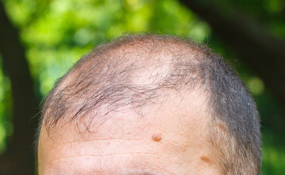 łysiejąca głowa dorosłego mężczyzny