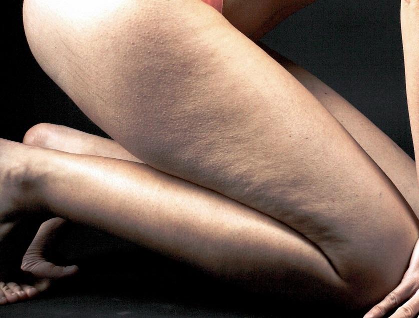 mały cellulit na prawej nodze młodej kobiety