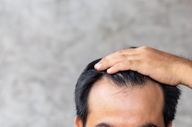 łysiejąca głowa mężczyzny